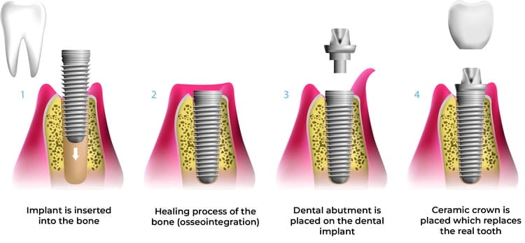 An illustration of the dental implant process as the implant and ceramic crown are inserted into the bone replacing the real tooth