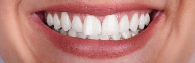 The smile of a person after getting teeth whitening treatment